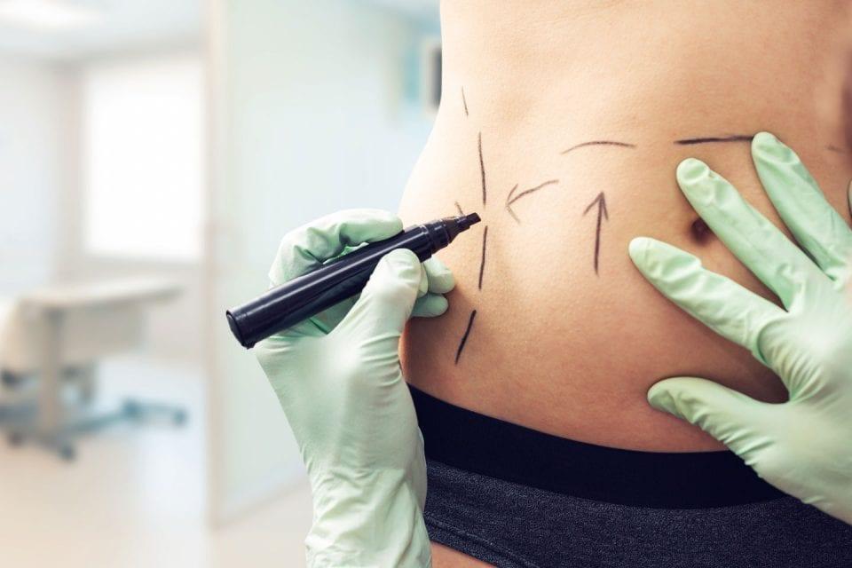 Surgical Procedures Plastic & Facial Plastic Surgery