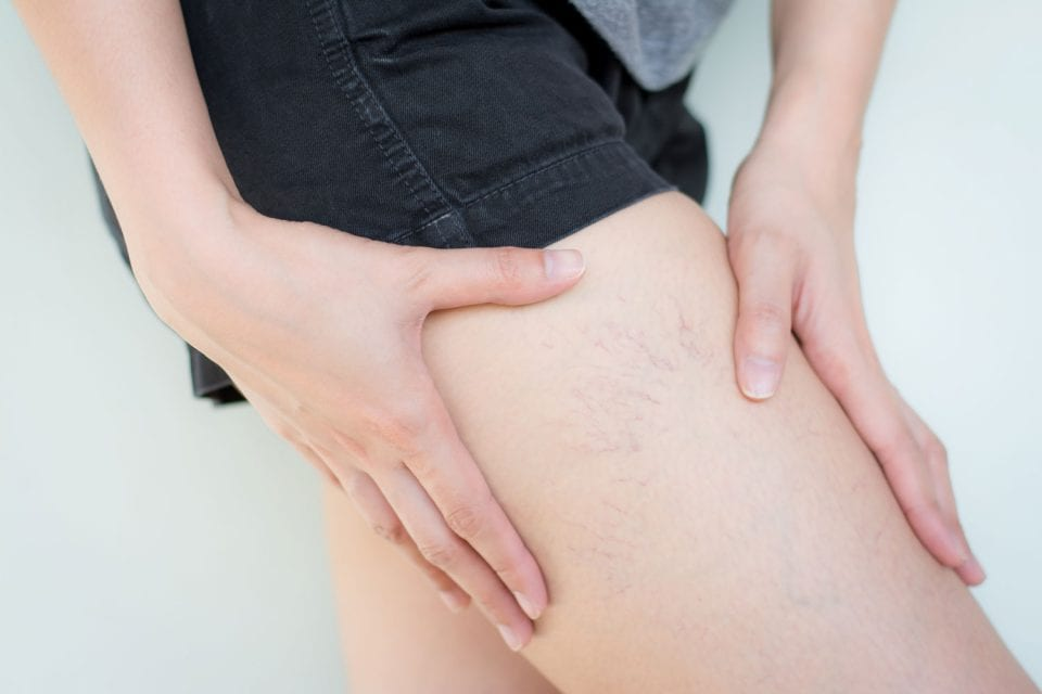 Varicose & Spider Vein Treatment Vascular & Vein Care